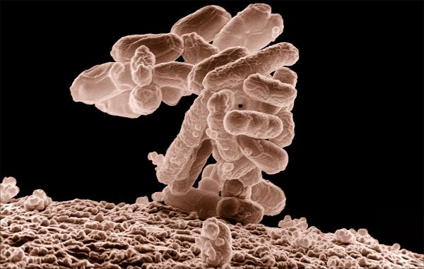 """Israeli scientists develop bacteria which """"eat"""" carbon dioxide"""