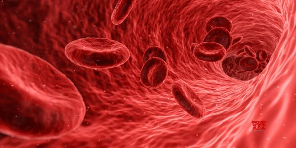 Higher neutrophil levels in blood linked to more severe COVID-19