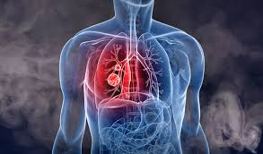 Long-term asbestos exposure can trigger lung cancer: Experts